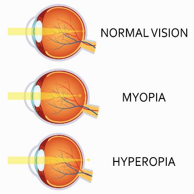 oftalmologie farmaceutică