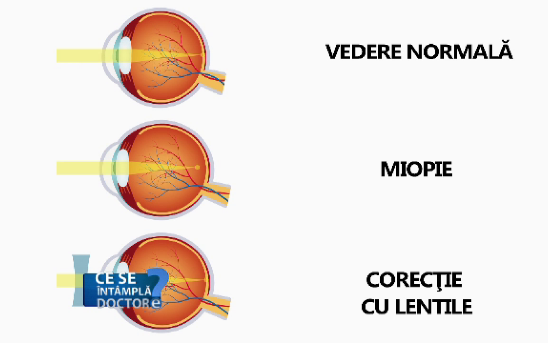 degenerescența maculară și miopia