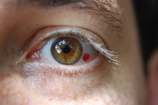 Presbiopia ochiului