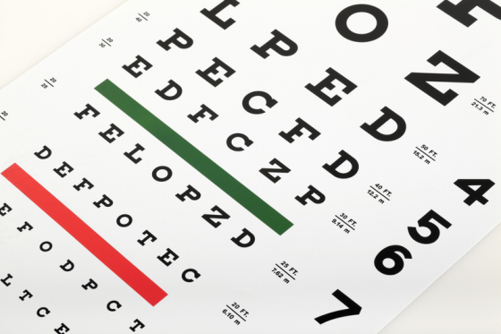 viziune în ochiul stâng acuitatea vizuală este de 30