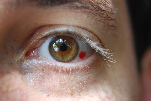 vederea unui ochi a căzut brusc boabe încolțite pentru viziune